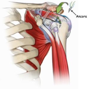 lesione cuffia rotatori 2