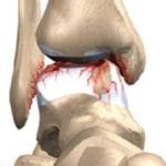 usura cartilagine caviglia