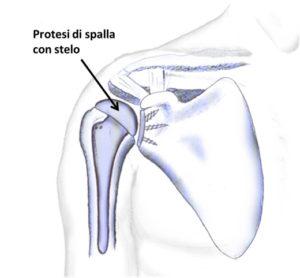 artrosi spalla 2