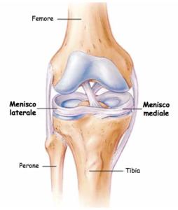 lesione menischi