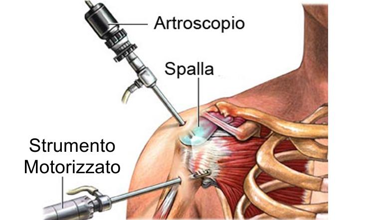 procedura artroscopica spalla 32235538b14c